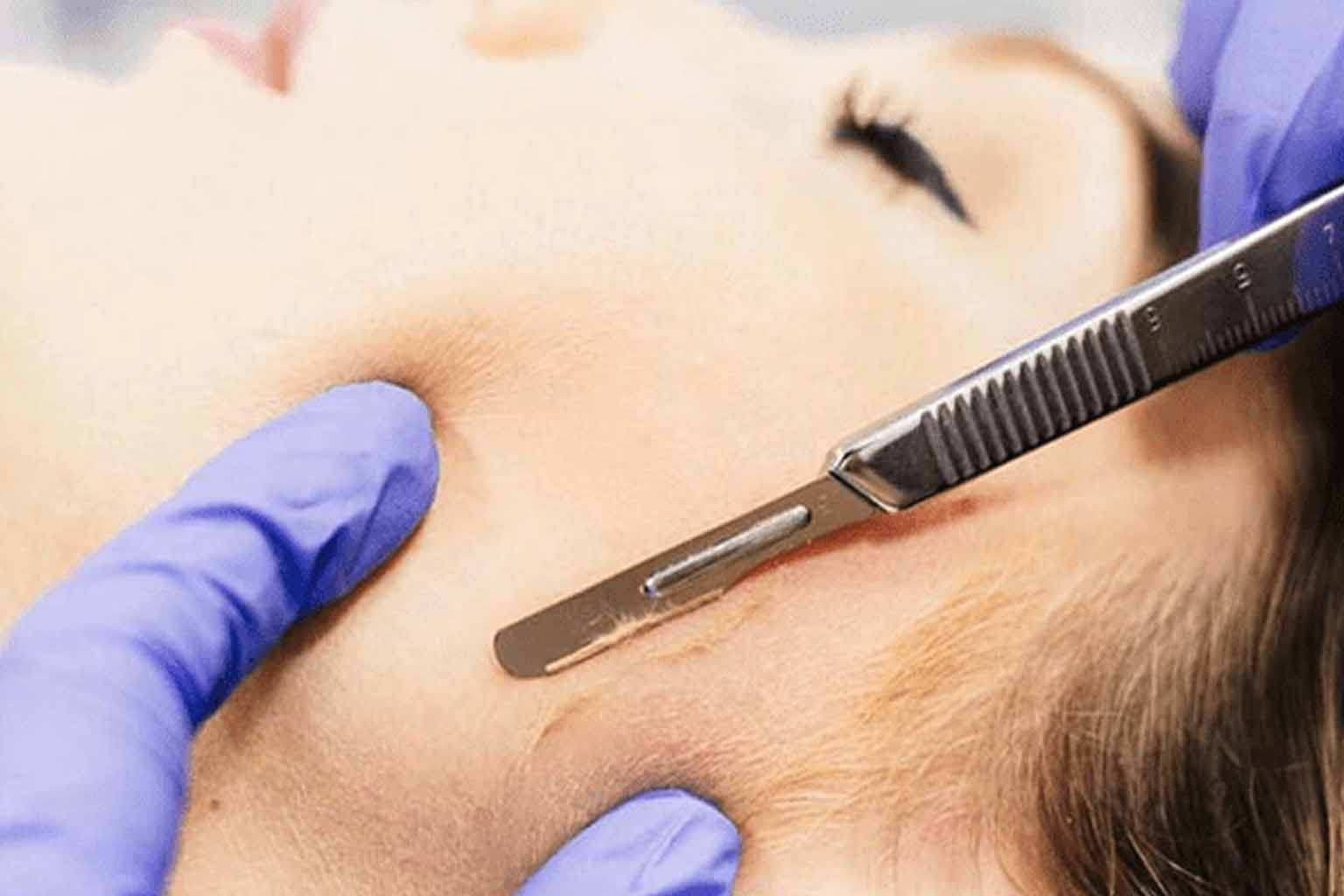 #101 Dermaplaning: The New Amazing Exfoliation Technique % - % The Voice Of Woman