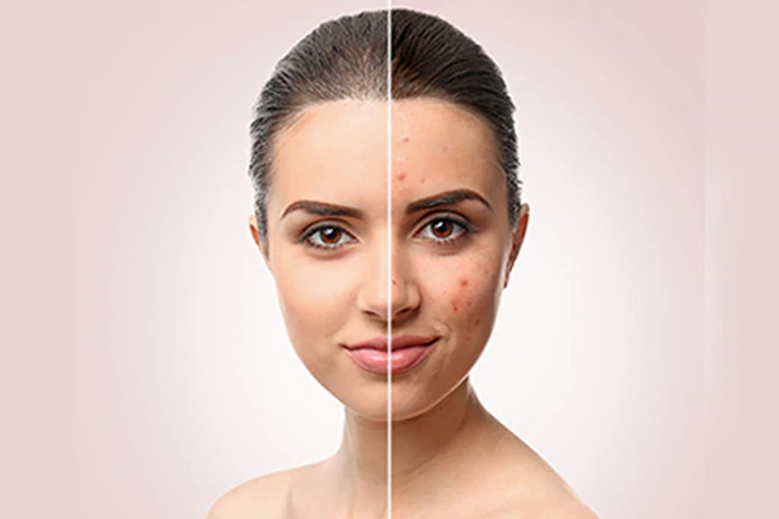 How To Get Rid Of Jawline Acne % - % The Voice Of Woman