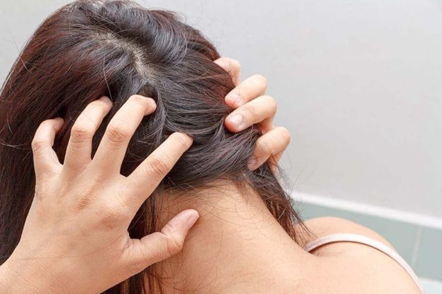 Itchy Scalp - 6818