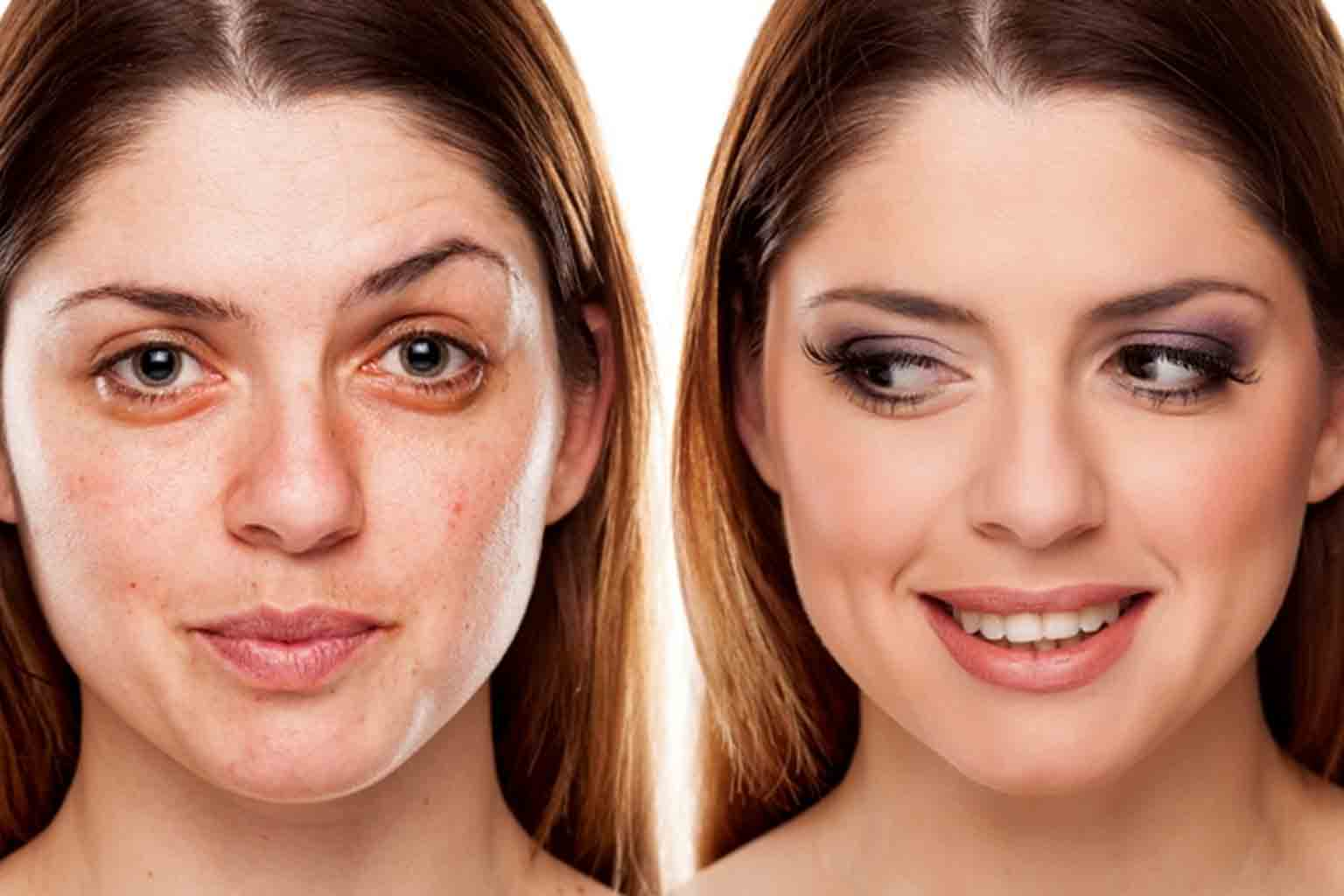 Facial Fillers are not for everyone