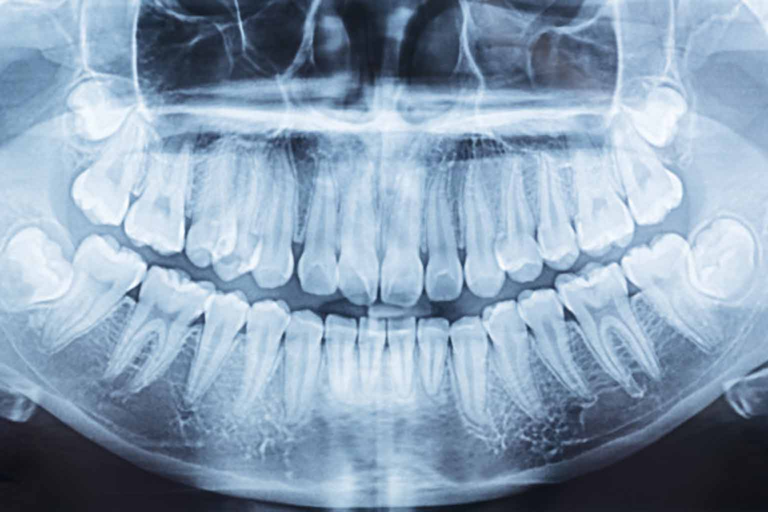 everything about impacted wisdom teeth