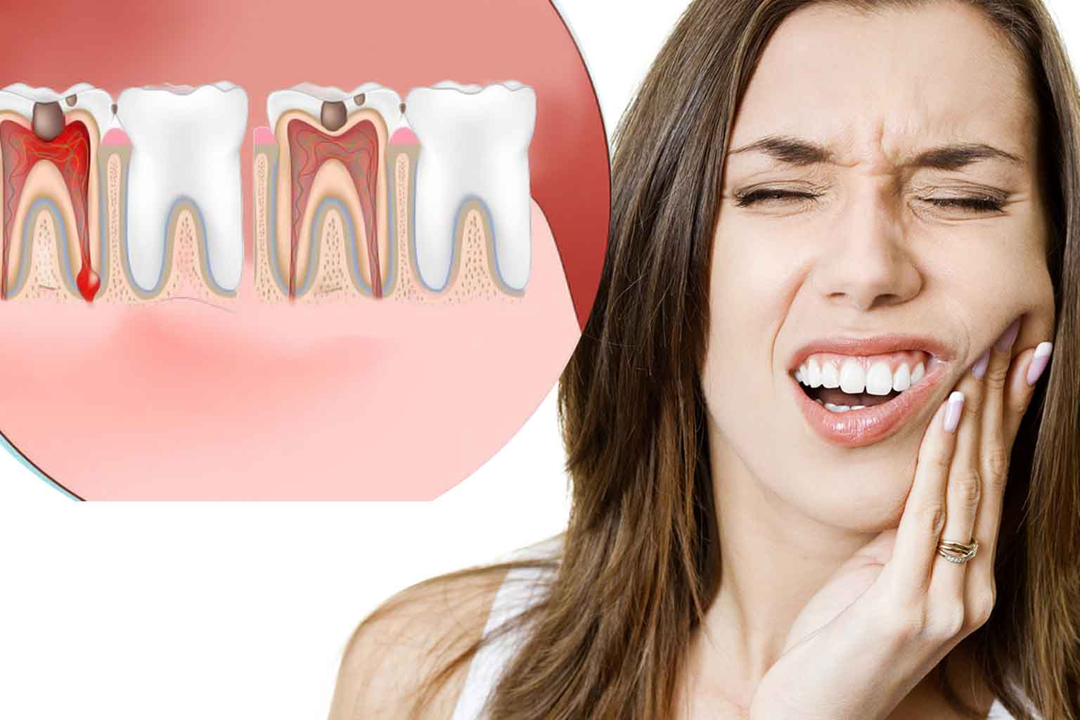 toothace treatment