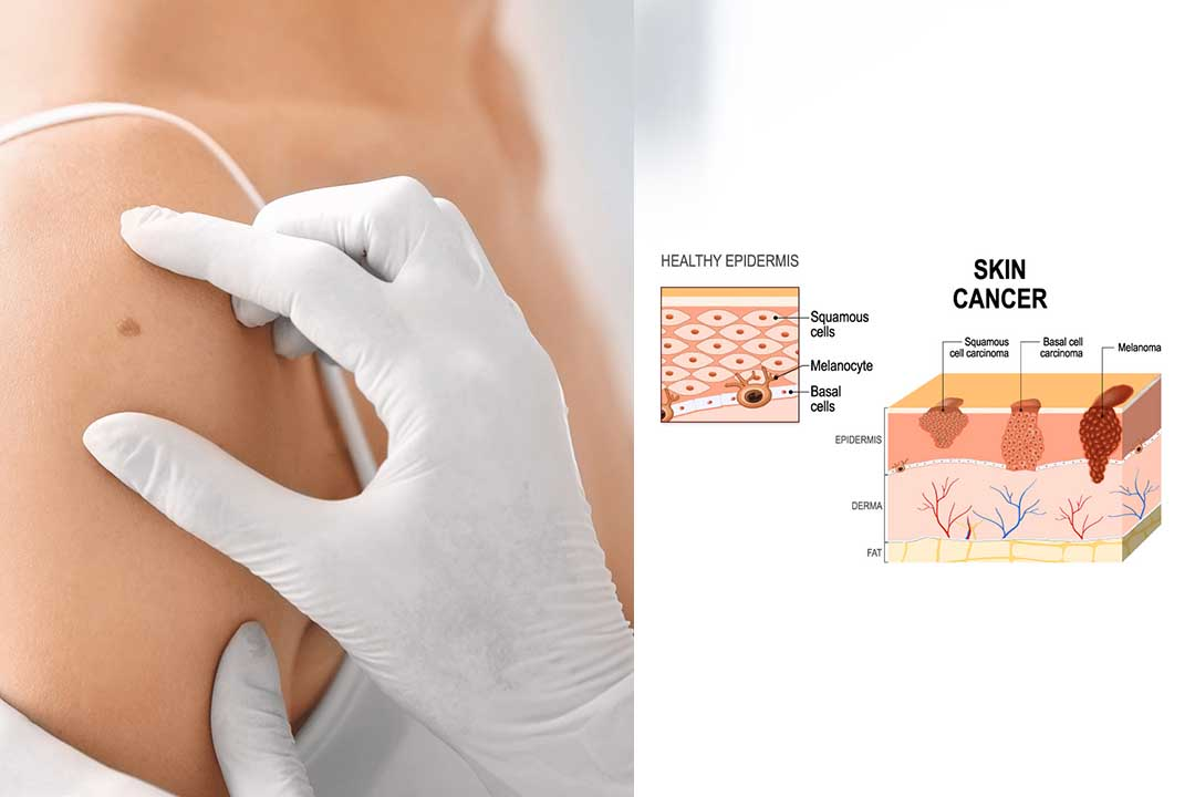 stages of skin cancer