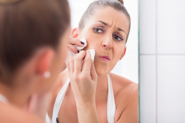 Prevent Scarring After Popping Pimple