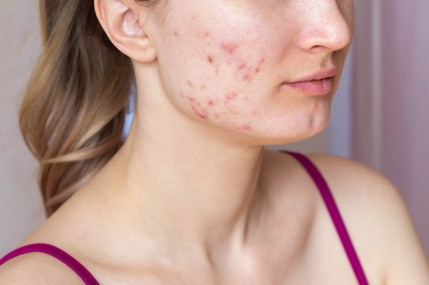 natural acne treatments and remedies